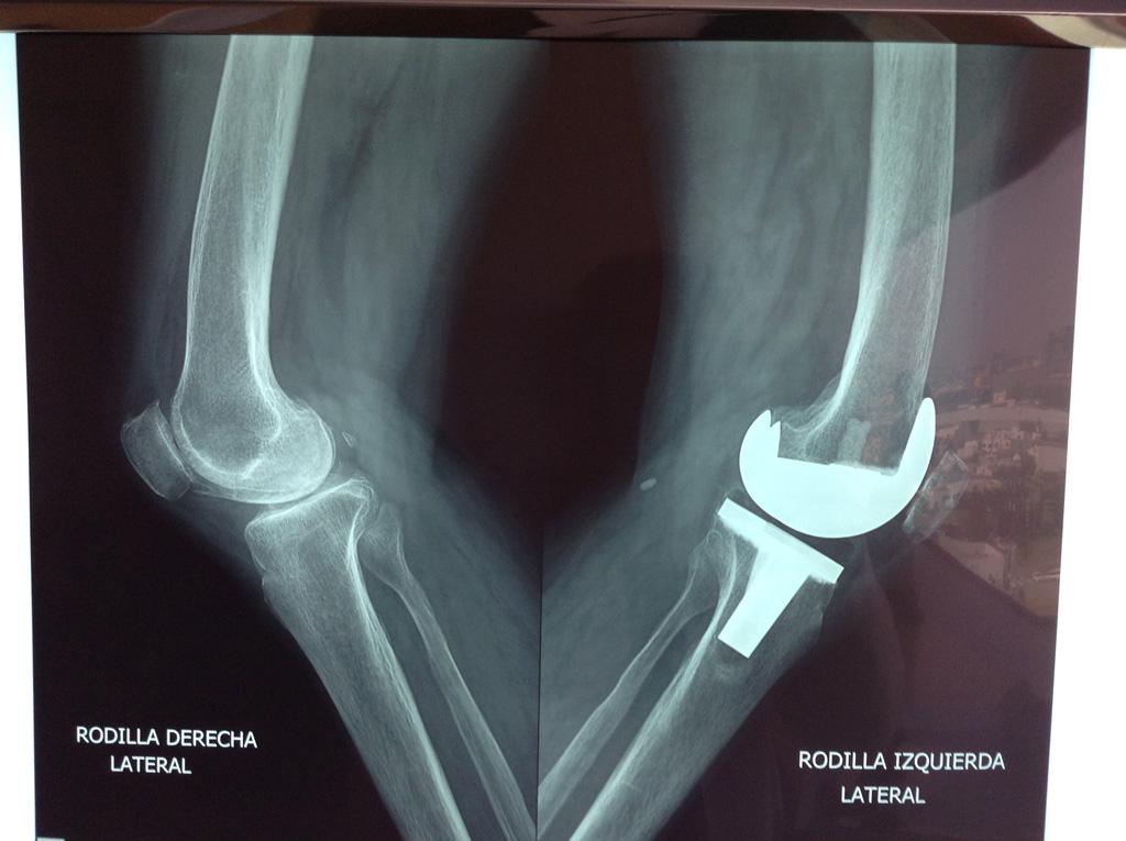 protesis-rodilla-3
