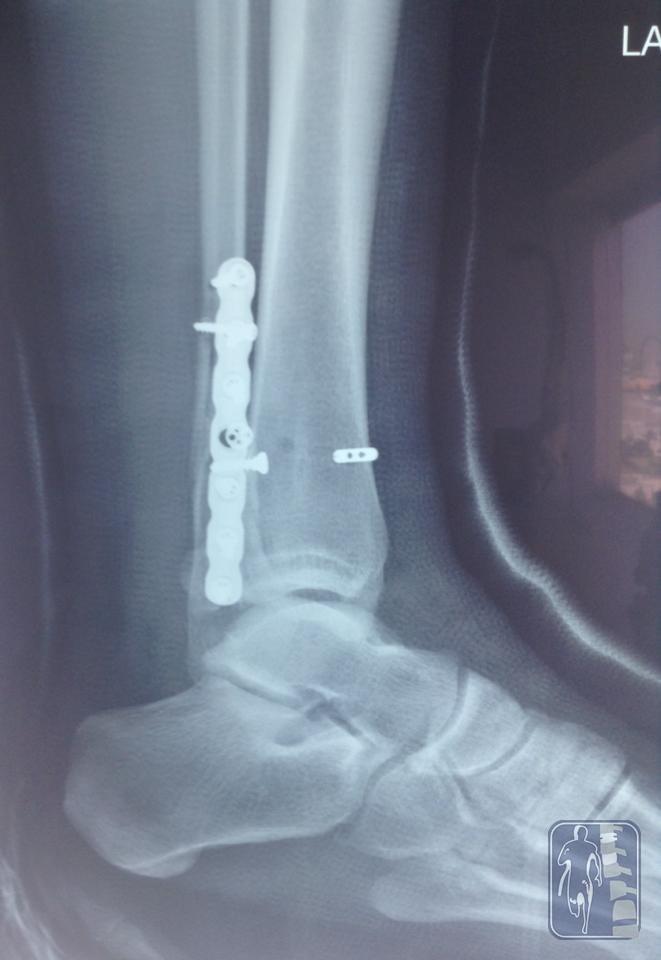 Osteosíntesis de peroné, cierre de sindesmosis y plástia de ligamento deltoideo