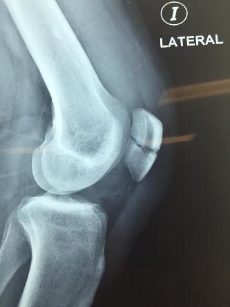 ruptura-tendon-2