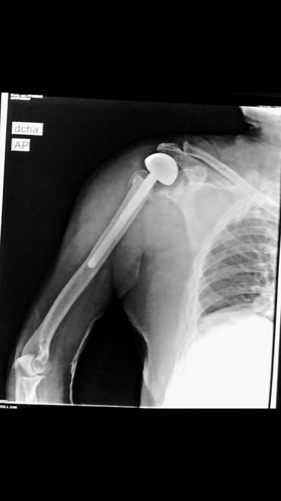 protesis-hombro-01
