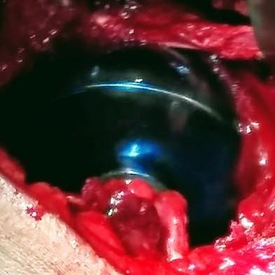 protesis-hombro-02