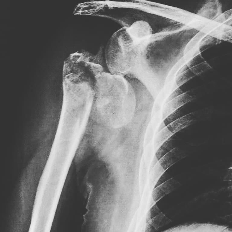 protesis-hombro-03