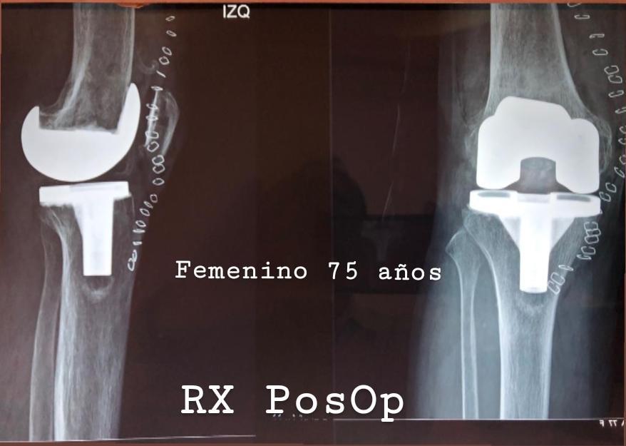 protesis-de-rodilla-2