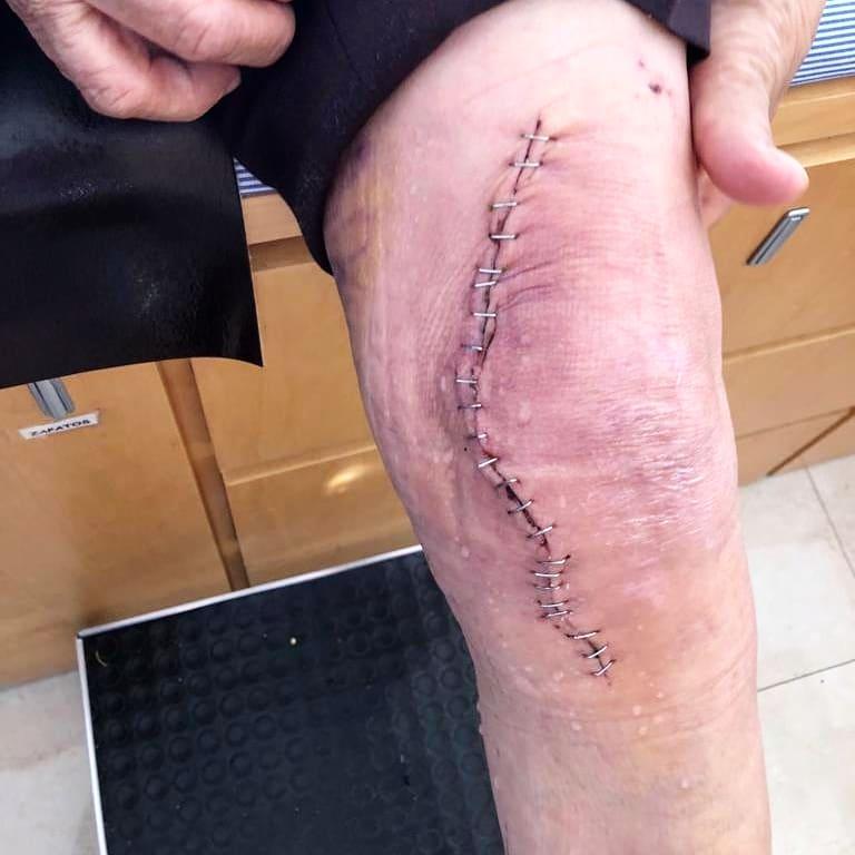 protesis-de-rodilla-3