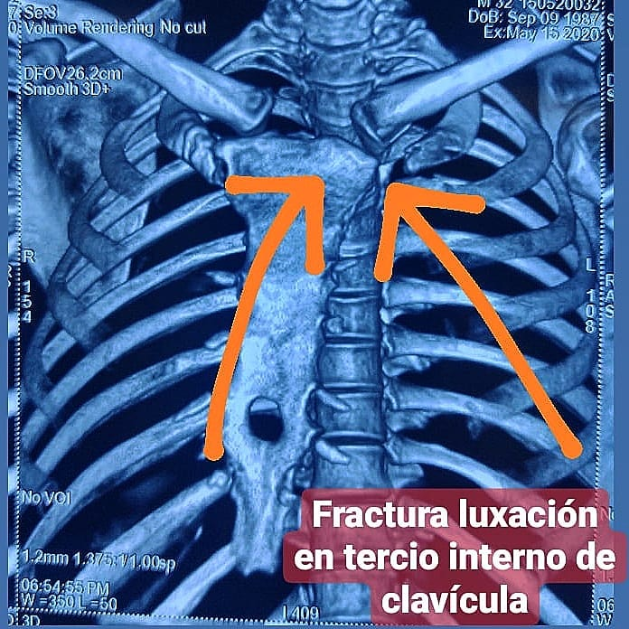 accidente-luxacion-1