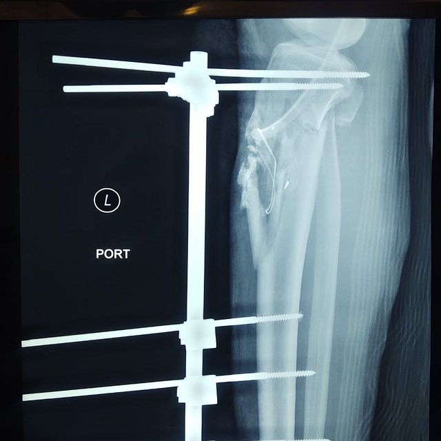 correcion-rodilla-2