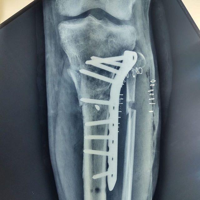 correcion-rodilla-3