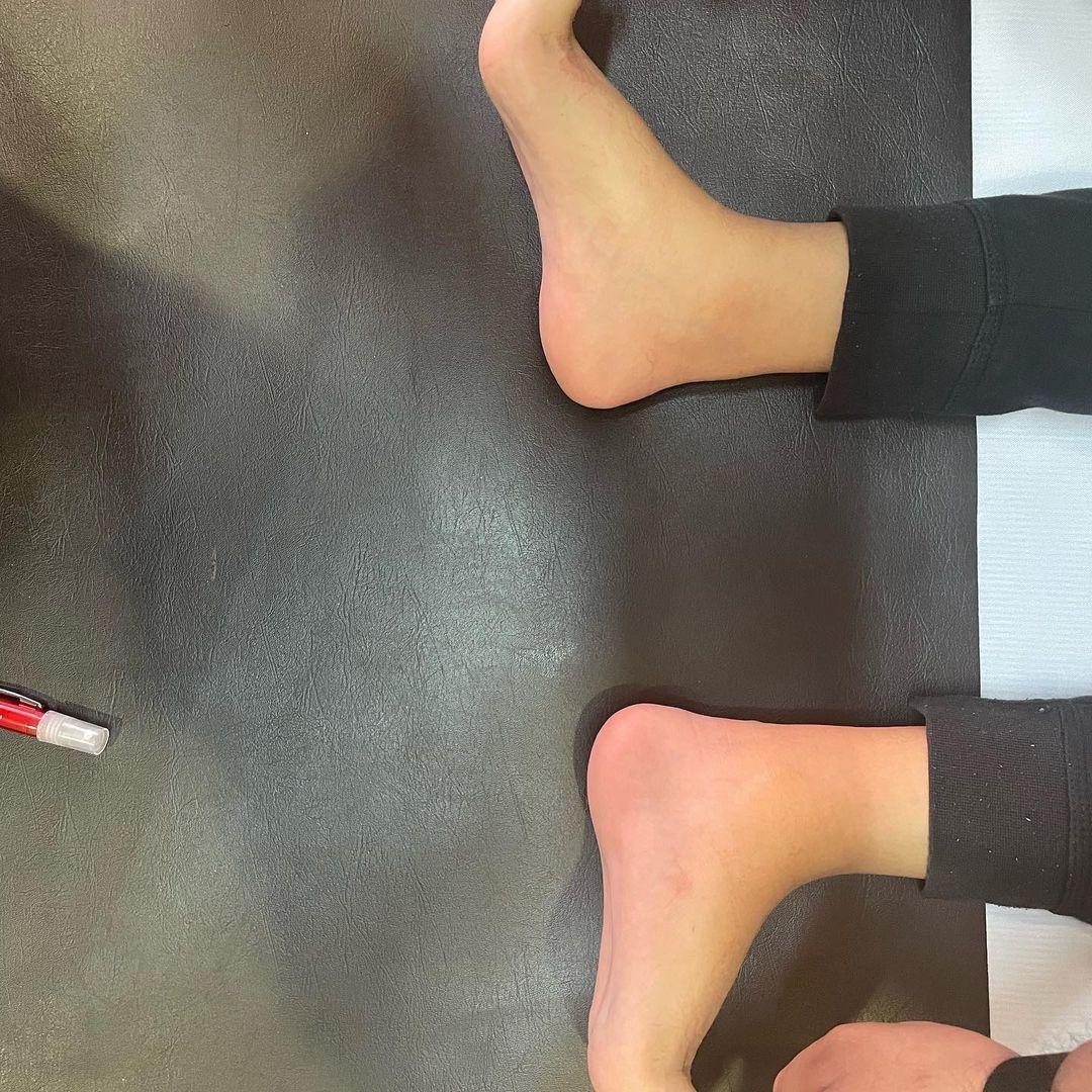 evolucion-protesis-4